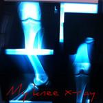 marathon_injury